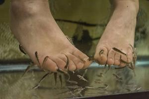 I cirka 30 minuter kalasar de små garra rufa-fiskarna på hudavlagringar.