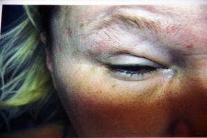 Allergianfallen slår sig även på ögonen som blir svullna.