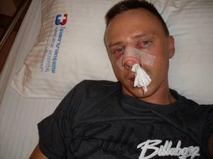 MISSHANDLAD. Jonny Lindblom från Ockelbo på sjukhuset i Thailand, där han hamnade efter att ha blivit allvarligt misshandlad under sin semesterresa. Foto: Privat