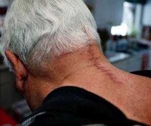 Gunnar Jonsson blev sydd med 24 stygn i nacken.