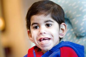 Tvååriga Murad har en sjukdom som gör att tandköttet vuxit sig onormalt stort. Han har också utslag i örat och på kroppen.