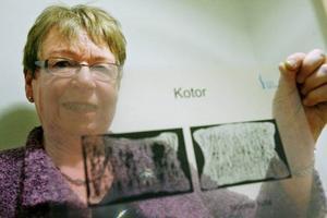 """""""Benskörhet är en folksjukdom"""", säger Kristina Andersson, pensionerad sjuksköterska från Frösön som nu är ordförande i Riksföreningen Osteopororikers. På bilden visar hon vad som händer vid en urkalkning av skelettet. Foto: Henrik Flygare"""