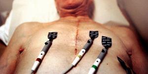 Patienter i norra delen av länet måste få chansen att åka till Sundsvall vid en hjärtinfarkt, anser debattören.