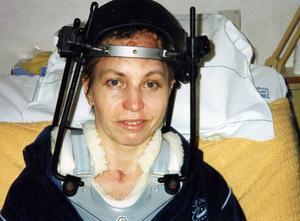 Eira fick rehabilitering i flera månader på Solliden i Östersund efter olyckan. Den här bilden är därifrån.Det finns däremot inga bilder från Umeå.– Eftersom det var osäkert om jag skulle överleva så togs det inga bilder där, säger hon.