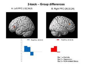 Genom att scanna kvinnornas hjärnor med magnetkameror i samband med olika övningar kunde Agneta Sandström konstatera att de hade en tydligt nedsatt funktion i pannloberna jämfört med friska människor.