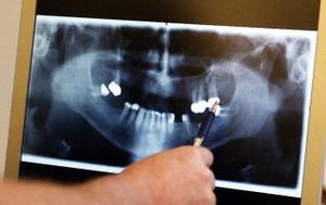 Röntgenbilden hjälper käkkirurgen Mikael Andersson att se hur tjockt ben Curt Näsberg har i överkäken.