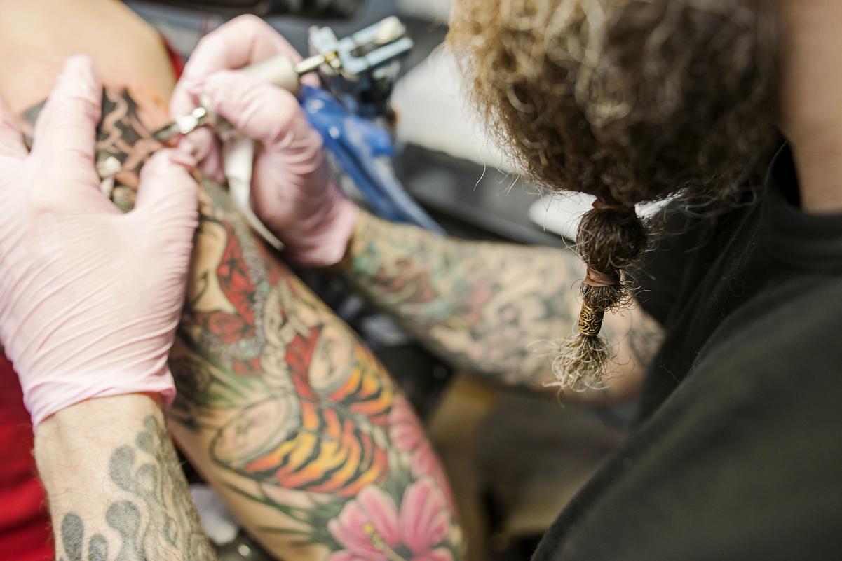ta bort tatuering västerås