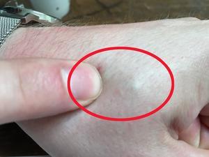Om man tittar noga när Anders trycker på handen kan man skönja chipet under huden mellan tummen och pekfingret på vänsterhanden.