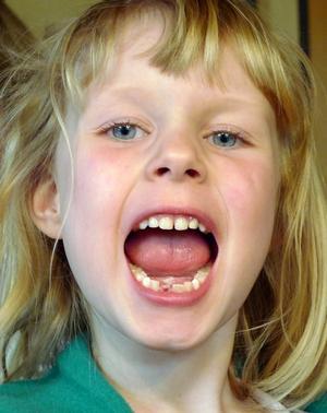 Moa visar stolt att hon tappat en tand