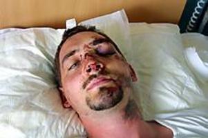 Mats Sshönrock körde ner i en  bussgrop  med sin cykel på Brynäsgatan. Nu vårdas han på sjukhus eftersom han spräckte pannbenet i falllet.