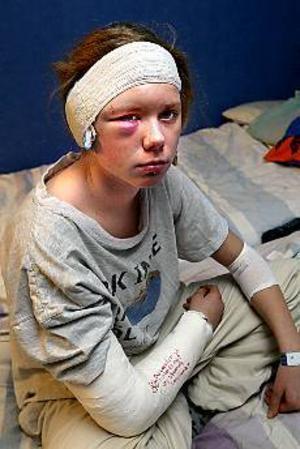 Nicole Edefors-Nordlöw är glad att hon lever. Hade inte två pojkar fått tag och hållit i hennes ben vet hon inte hur det hade slutat när hon drogs med bussen. FOTO: LEIF JÄDERBERG