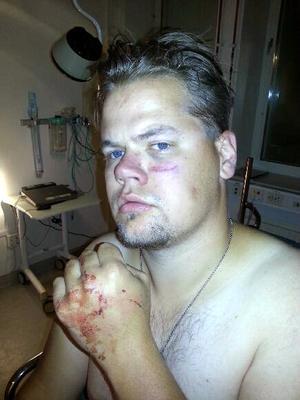 Alexander Bortas med sina skador.
