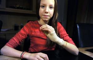 Jennifer har ont i sin brända hand och såren läggs om var tredje dag.