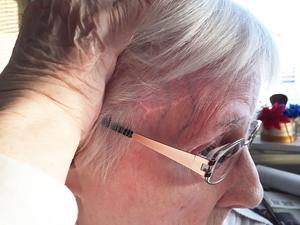 Läkaren gick in med en skalpell och skar av nervbanor som leder till djupare delar av hjärnan.