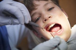 Tandläkare Pal Gergely vid folktandvården i Nacksta kan konstatera att 10-årige Elias Böhlén inte hade några problem med karies. Men Västernorrlands 12-åringar har sämst tandhälsa i landet enligt siffror från Socialstyrelsen.