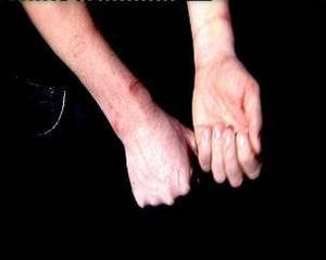 """Rånaren band fast händerna med buntband som drogs åt så hårt att receptionisten """"Erik"""" fick djupa märken på handlederna. I kvällens tv-program berättar Erik om rädslan han kände under och efter rånet."""