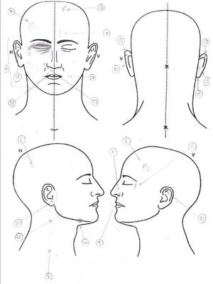 Enligt rättsintyget hade 21-åringen 25 skador bara på huvudet och halsen, det handlar om allt från blödande sår och blålila missfärgningar till skador på ögats bindhinna.