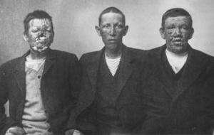 Tre pojkar som vistades på Järvsösjukhus 1906. De är 13, 15 och 20 år gamla.