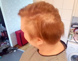 De senaste två åren har Åsa Sköldehammar också börjat tappa hår.