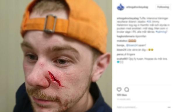 På IFK Arbogas instagramkonto lade klubben upp en bild efter måndagens träning när Jimmy Hellström träffades olyckligt av en puck.