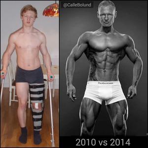 Bilden till vänster visar hur Calle såg ut som 17-åring, när han hade skadat sig på isen.