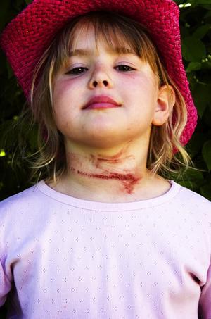 Fult märke. Det är måndag, dagen efter olyckan i Säterdalen, men Alva Mattsson har ett stort fult märke på halsen efter repet som fastnade runt hennes hals.