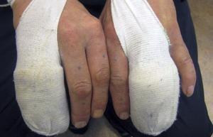 Frakturer. En av de misshandlade fick flera fingrar brutna.