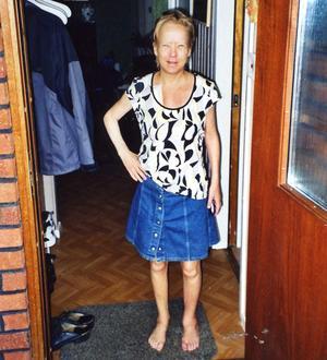 Bara skinn och ben, men vid gott mod. Bilden är från augusti 2008, nio månader före transplantationen. Redan då var hon benskör, vilket syns på hennes vänstra ben där en märgspik fick sättas in från fot till knä.
