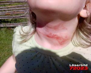 Repet fastnade. Rejäla skrapmärken syns på Alva Mattssons hals efter repet som fastnade runt hennes hals då hon åkte i rutschbanan i Säterdalen.